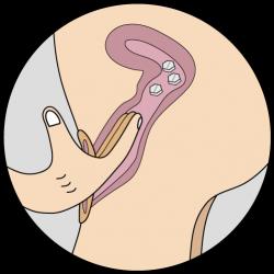 Tratamiento intravaginal misotrol